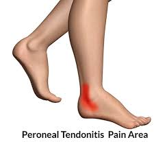 turmeric for tendonitis 3
